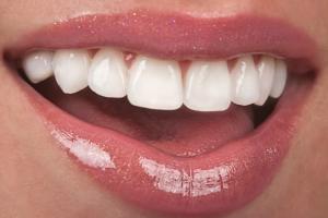 Лечение зубов Картинка 2