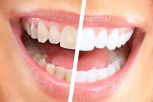 чистка зубов2