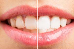 чистка зубов ультразвуком2
