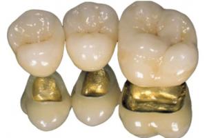Протезирование зубов металлокерамикой Фото 1