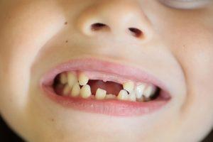 Лечение молочных зубов3