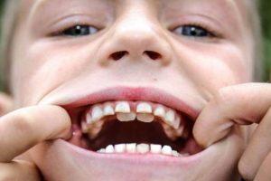 Лечение молочных зубов5