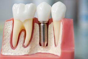 имплантация зубов4