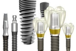 имплантация зубов6