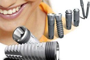 имплантация зубов7