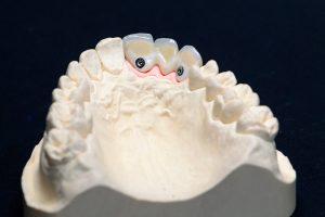 имплантация зубов8