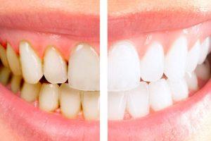 отбеливание зубов2