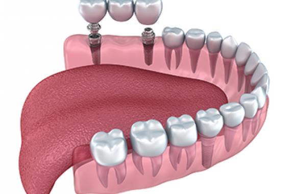 Несъемные зубные протезы Фото 1