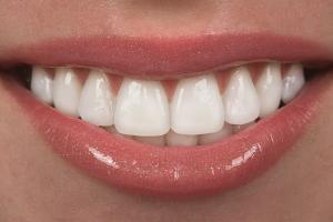 Несъемные зубные протезы Картинка 1