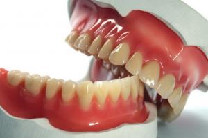 Полное протезирование зубов Фото 1