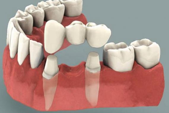Зубной мост Фото 1