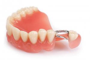 Зубной мост из металлокерамики Картинка 1