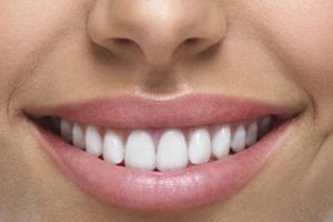 Зубной мост из металлокерамики Картинка 2