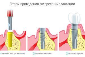 Экспресс-имплантация3