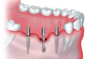 Имплантация 3 зубов подряд1