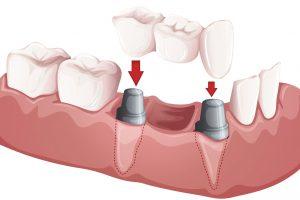 Имплантация 3 зубов подряд10