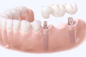 Имплантация 3 зубов подряд2
