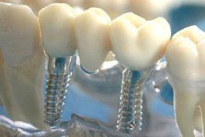 Имплантация 3 зубов подряд3