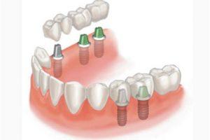 Имплантация 3 зубов подряд4