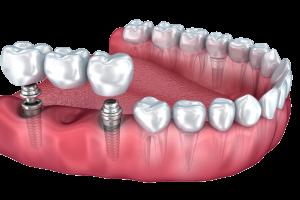 Имплантация 3 зубов подряд5