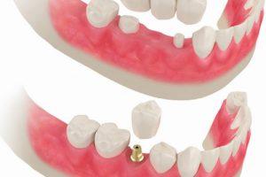 Имплантация 3 зубов подряд6