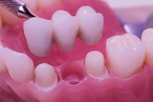 Имплантация 3 зубов подряд7
