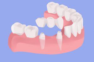 Имплантация 3 зубов подряд8