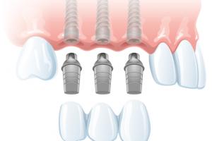Имплантация 3 зубов подряд9